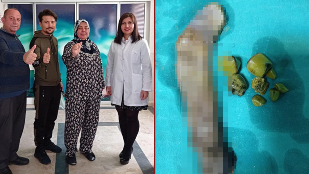 Karın ağrısı şikayetiyle hastaneye giden kadın, 30 santimlik safra kesesi ile dünya tıp literatürüne girdi