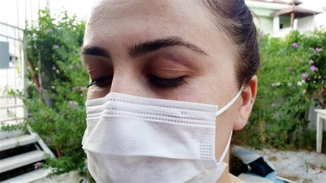 5 yıldızlı otelde maske kavgası! Hemşireye terlik fırlattılar