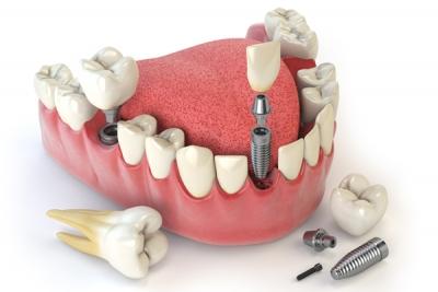 En iyi diş bakımını sağlamak için buradayız!