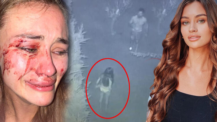 Son dakika haberler... Top model Daria Kyryliuk'e dayak iddiasında yeni görüntüler ortaya çıktı!