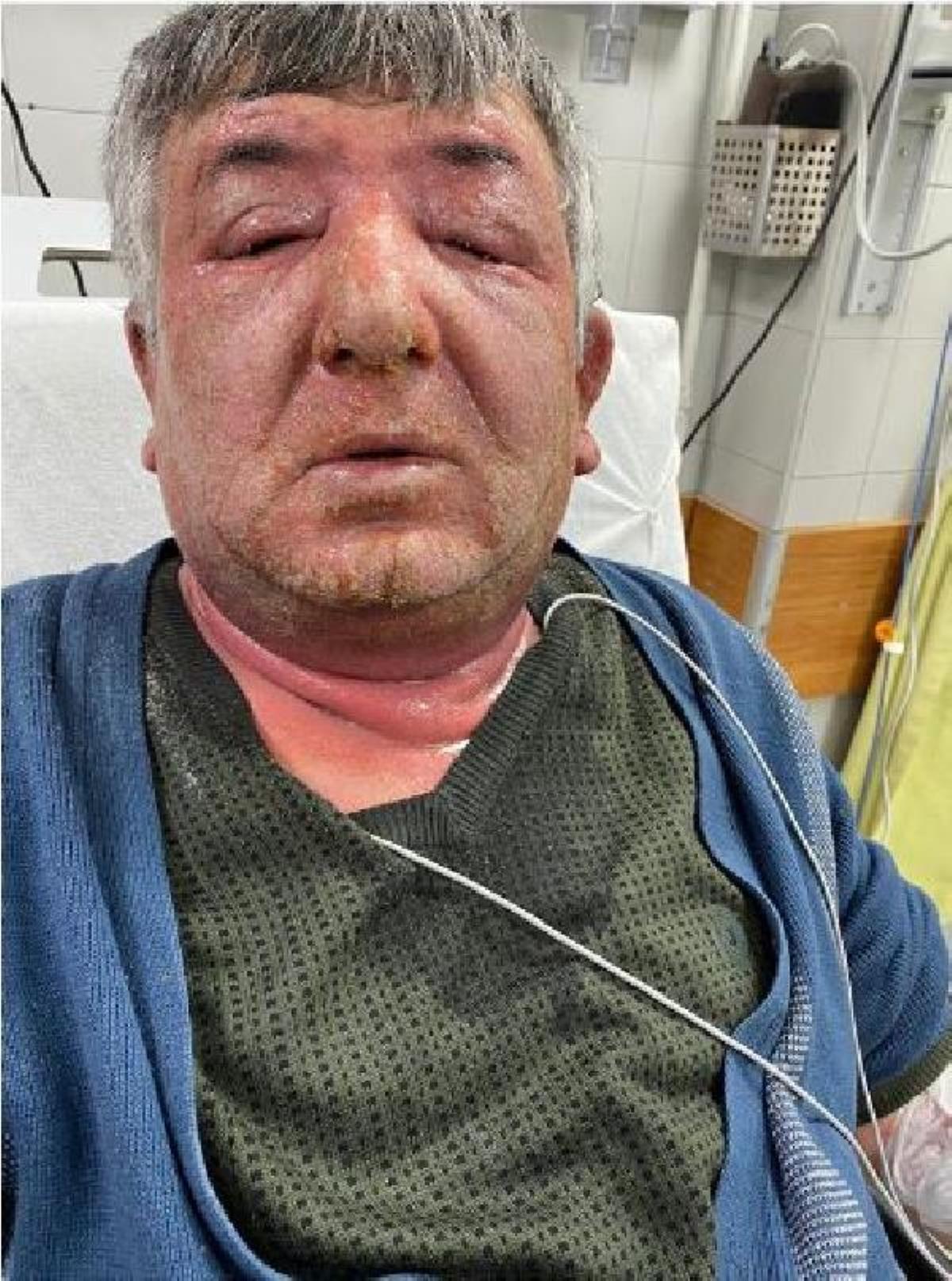 Yüzüne sürdüğü dezenfektan hastanelik etti